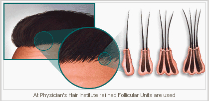 Hair_Transplant_Trichophytic_Closure___Follicular_Unit_Extraction.png